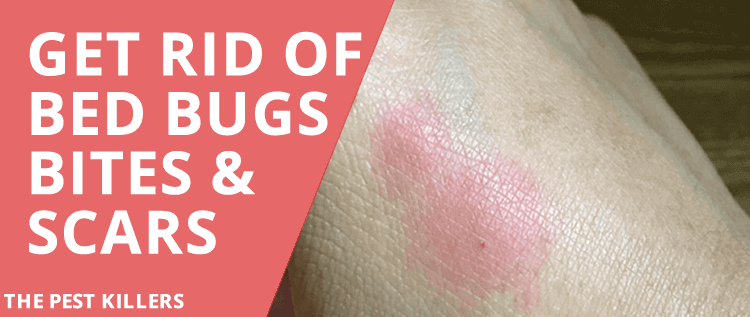 How to Get Rid of Bed Bug Scars and Bites