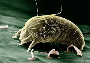 Dust Mite Bites The Allergy That Looks Like A Bite Thepestkillers